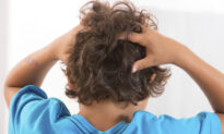 A Simple and Cost-Effective Way to Get Rid of Lice That You Might Be Unaware Of