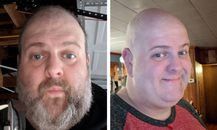 Selfies of Ed Maudlin taken before and after he shaved his beard during a lockdown to prevent the spread of the virus in Indianapolis, on March 24, 2020. (Ed Maudlin/Handout via REUTERS)