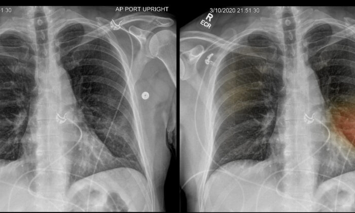 Two X-ray images show a patient's diseased lungs. Using an artificial intelligence program developed by Dr. Albert Hsiao and his colleagues at UC San Diego Health system, the image on the right has been dotted with spots of color indicating where there may be lung damage or other signs of pneumonia. (Courtesy of Dr. Albert Hsiao)