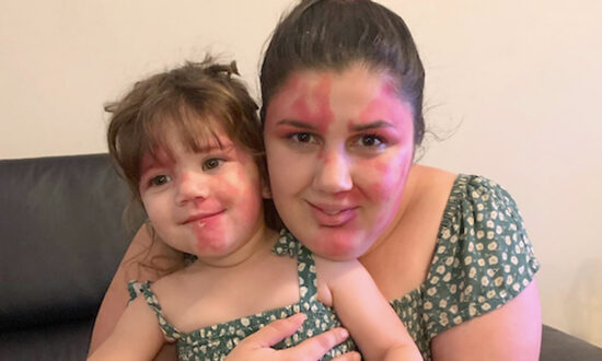 Mom Paints Face to Match Toddler's Facial Birthmark: 'I Wanted to Be Just as Beautiful as Her'