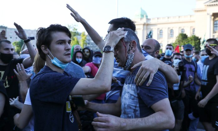 Actor and leader of PSG movement Sergej Trifunovic receives help after being attacked by protesters during an anti-government rally, amid the spread of the  disease (COVID-19), in front of the parliament building in Belgrade, Serbia, on July 8, 2020. (Marko Djurica/Reuters)