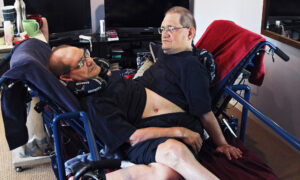 World's Longest-Surviving Conjoined Twin Brothers Die at the Age of 68