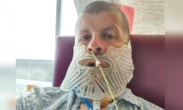 Man Who Hadn't Been to a Dentist for 27 Years Has Jaw Removed After Fist-Sized-Tumor Diagnosis