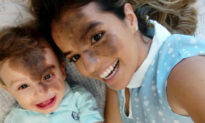 Mom Paints Her Face to Help Son With 'Kiss of God' Facial Birthmark Build Self-Confidence
