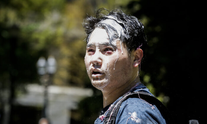Andy Ngo, a Portland-based journalist, is seen covered in unknown substance after unidentified Rose City Antifa members attacked him in Portland, Ore., on June 29, 2019. (Moriah Ratner/Getty Images)