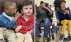 Two Special-Needs Best Friends With Low Life Expectancy Graduate High School Side by Side