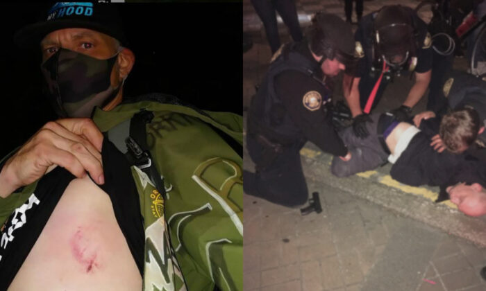 Michael Reinoehl, left, in a selfie photograph, showcasing what he said was a wound from being hit with a beanbag fired by police officers, in Portland, Ore., on July 3, 2020. On right, a man later identified as Reinoehl in court records is arrested in Portland, Ore., early July 5, 2020. (michael_reinoehl/Instagram; Portland Police Bureau)