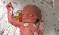 Baby Born With Small Intestines Outside His Tiny Body Has a Successful Surgery
