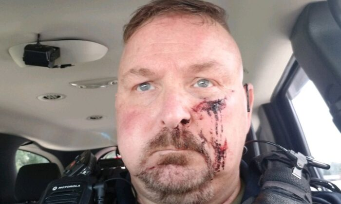 "A South Carolina police chief was stabbed in the face by a man who told him that he was ""going to die today"" when he answered the door, authorities said. (Bonneau Police)"
