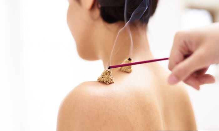 A combination of acupuncture and moxibustion therapy was found to be superior in treating sudden deafness as compared with the routine drug-based therapy. (number-one/Shutterstock)