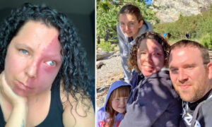 Mom Who Was Bullied for Facial Birthmark Thought She'd Never Find Love, Now Has a Dream Family