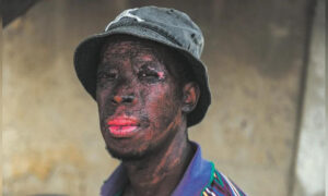 Man's Face, Hands Scarred While Saving a Baby From a Burning Shack