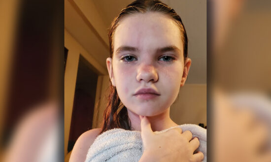 Schoolgirl's Rare Water Allergy Is So Severe Even Showers Could Be Fatal