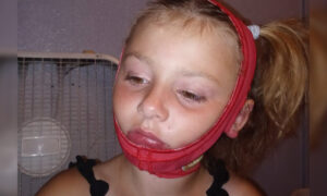 Girl's Face Burned After Hand Sanitizer She Was Playing With Catches Fire