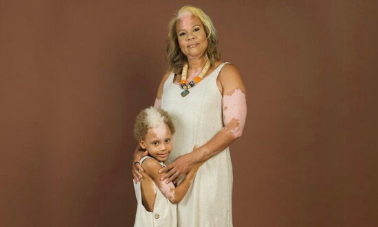 Boy, 7, With Rare Skin Condition Like His Mom Becomes Face of Inclusion in the Fashion Arena