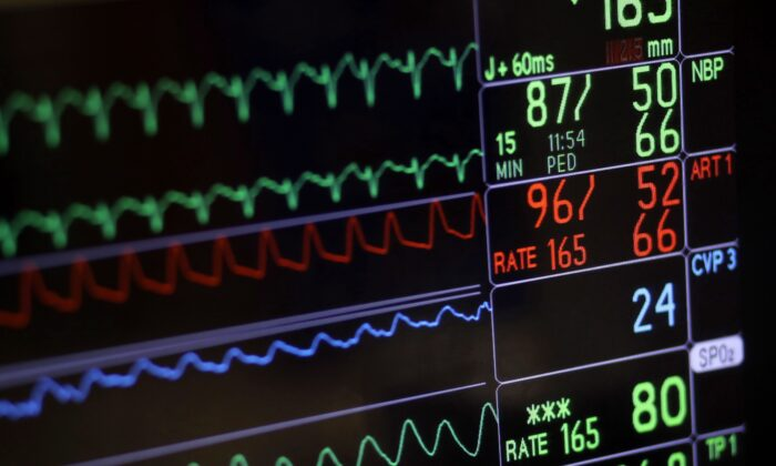 A screen displays a patient's vital signs during open heart surgery at the University of Maryland Medical Center in Baltimore on Nov. 28, 2016. Some experts fear that legislation intended to make it easier for intolerably suffering Canadians to receive medical assistance to end their lives might actually make it harder in some cases and will create confusion among doctors who provide the procedure. (Patrick Semansky/The Canadian Press/AP)