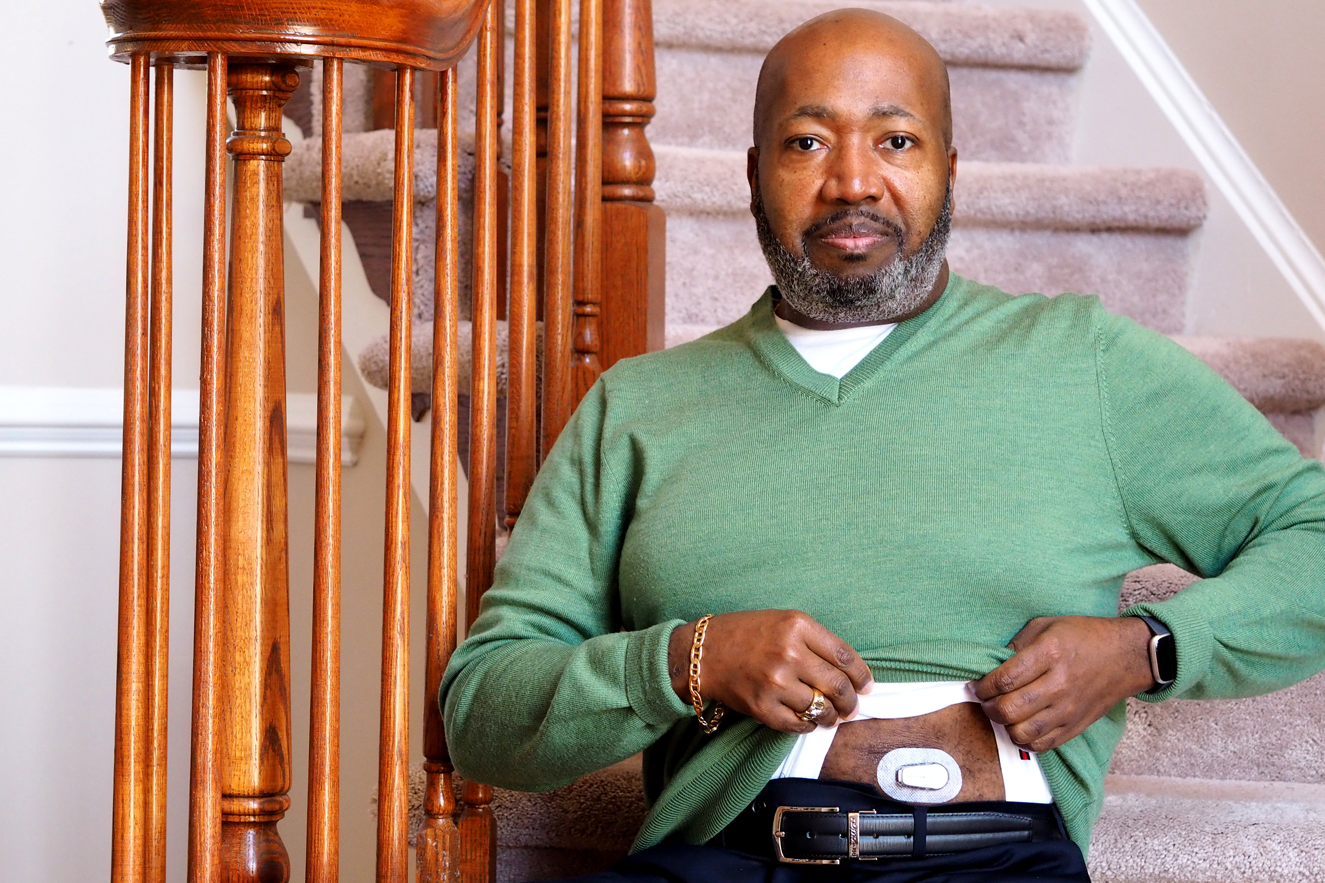 Trevis Hall, of Fort Washington, Maryland, credits a continuous glucose monitor with helping him get his diabetes under control. Makers of the device say that the instant feedback provides a way to motivate healthier eating and exercise. But experts point out that the few studies on the monitors show conflicting results. (Lynne Shallcross/KHN)