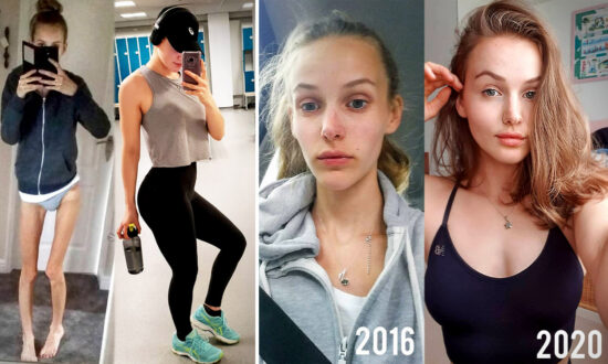 Anorexic Teen Was Rushed to Emergency–Became Fitness Guru After Making Incredible Recovery