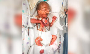 Baby Born Size of Sharpie Defies Incredible Odds of Survival; 4.5 Months Later, He's a 7-Pound Miracle