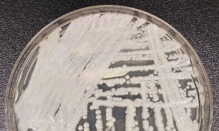 A strain of Candida auris cultured in a petri dish at a CDC laboratory in 2016. (Shawn Lockhart/CDC via AP)