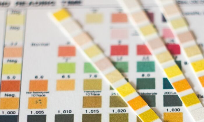 Dark urine can indicate serious health problems. (Topolszczak/Shutterstock)