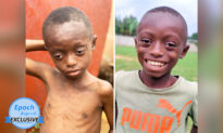 Severely Beaten and Left Alone to Die, Boy Becomes 'Happiest Child' After Rescue and Rehab